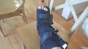 broken leg european travel insurance